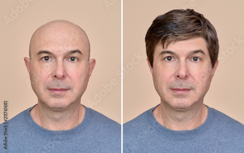 Obraz na płótnie Two portraits of a same middle aged bald man before and after wearing wig