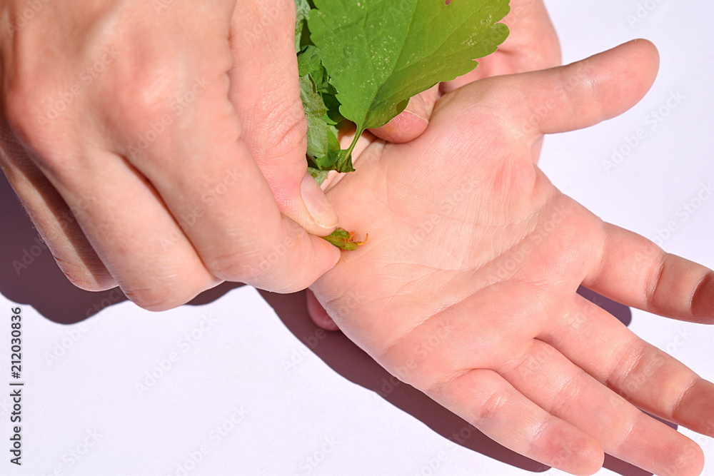 Fototapeta Treatment of a flat wart with celandine juice