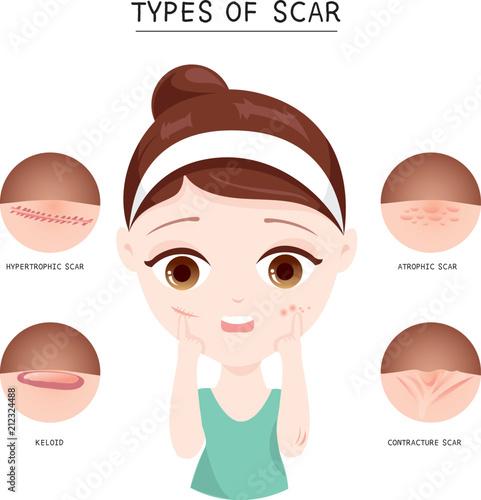 Types of  scar Fototapeta