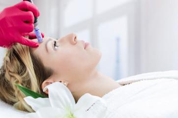 Dermapen forehead treatment