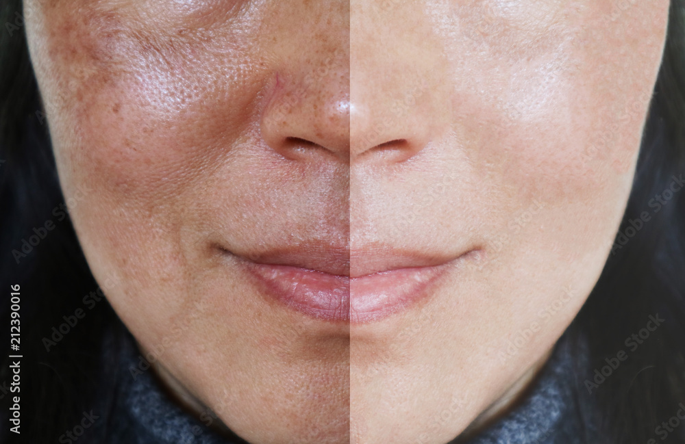 Fototapety, obrazy: Face with open pores and melasma before and after make up or treatment concept.