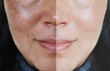 Face with open pores and melasma before and after make up or treatment concept.