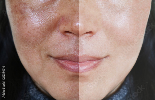 Photo Face with open pores and melasma before and after make up or treatment concept