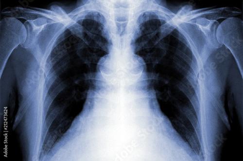 x-ray film – kaufen Sie dieses Foto und finden Sie ähnliche Bilder ...