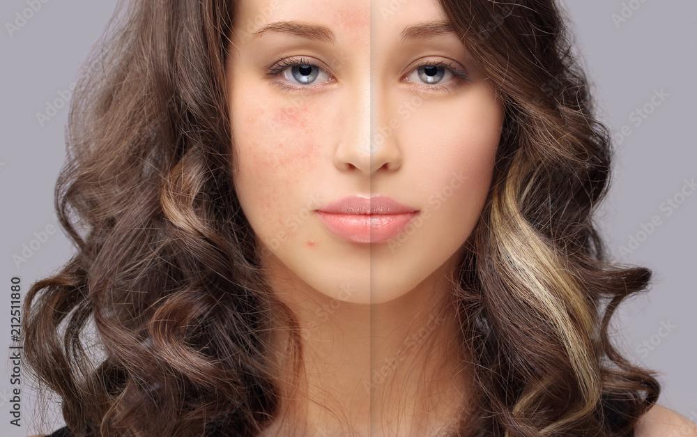 Fototapety, obrazy: Post-Acne Marks /Treating Acne Scars