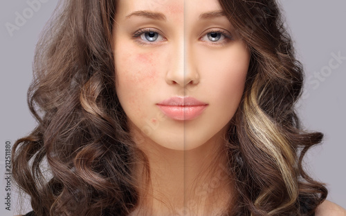 Obraz Post-Acne Marks /Treating Acne Scars - fototapety do salonu