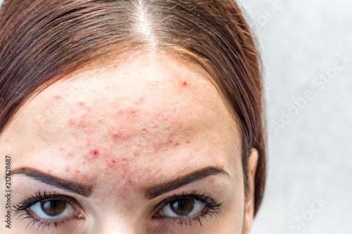 portrait of a young woman with pimples, pigmentation spots and post acne Canvas Print