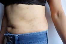 Atopic Dermatitis On Skin Body...