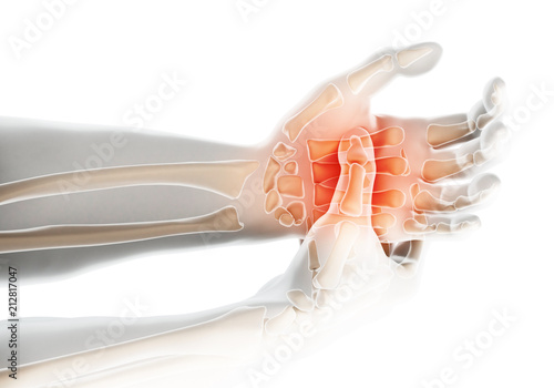 Palm painful - skeleton x-ray, Medical concept.