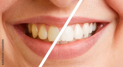 Fotografija Vergleich von Zähnen vor und nach Zahnreinigung