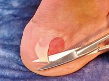 Doctor Cut Dead Skin On Leg.  Craced Terrible Blister On Human Heel.