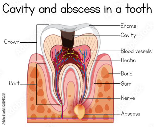 Photo Cavity and Abscess in a Tooth
