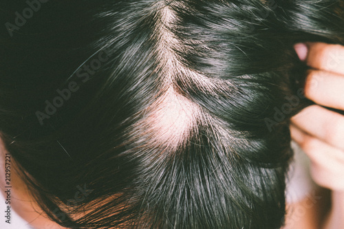 Man with alopecia areata on head, Spot Baldness, Hair fall problem Wallpaper Mural