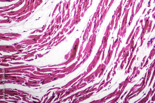 Photo Brown atrophy of the heart, light micrograph, photo under microscope
