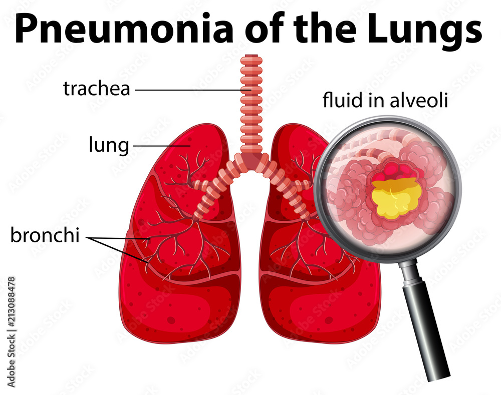 Pneumonia Of The Lungs Diagram Foto Poster Wandbilder Bei Europosters