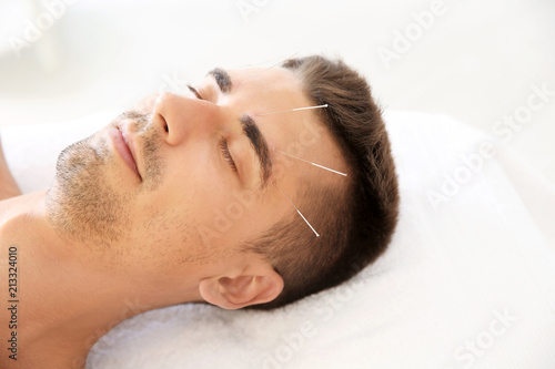 Photo Young man undergoing acupuncture treatment in salon