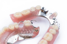 Partial Denture Upper Side On A White Background