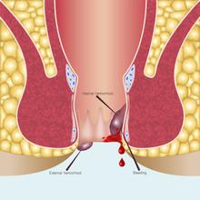 Internal Hemorrhoids And External Hemorrhoids