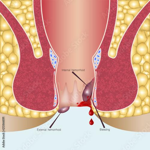 Photo Internal hemorrhoids and external hemorrhoids