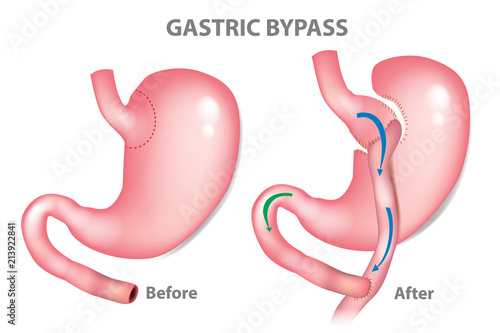 Fotografía Gastric bypass surgery - RNY (Roux-en-Y ). MINI-GASTRIC BYPASS