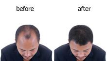 Bald Head Of A Man.