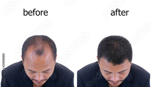 Fototapeta bald head of a man.