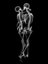 X RAY Skeleton Couple In Love ...