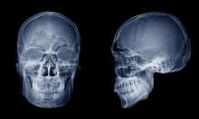 Very Good Quality X-ray Image ...