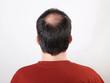 Leinwanddruck Bild - male head with thinning hair or alopecia