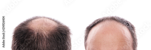 circular hair loss at the back of the head and receding hairline at the front Tapéta, Fotótapéta