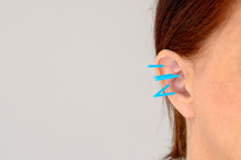 Close Up Of Acupuncture Needles In Womans Ear