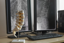 Human Lumbar Spine Model And Background Of X-rays Lumbar Spine