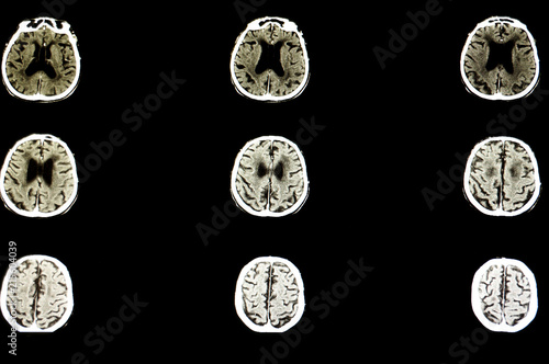 a patient with brain atrophy Wallpaper Mural