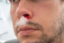 Young Man With Bleeding Nose H...
