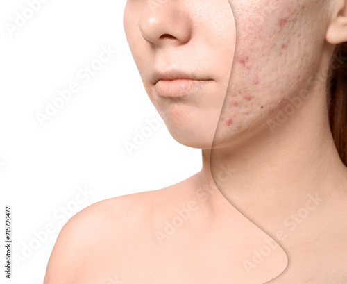 Photo Young woman with acne problem on white background