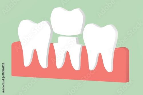 Dental Crown Cartoon / Dental crowns are often used in restorative dentistry to restore a broken / damaged tooth.