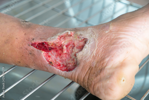 Close up Infected wound.Opened wound at left leg Poster Mural XXL