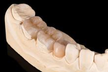 Dental Crowns And Veneers