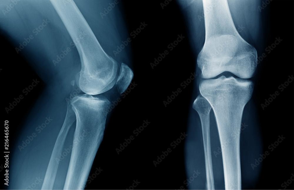 Fototapety, obrazy: x-ray OA knee x-ray