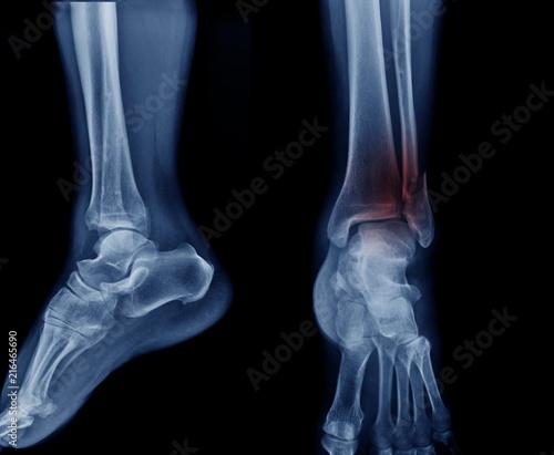 Slika na platnu x-ray image tibia fracture