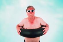 Sunburned Man With Sunglasses ...