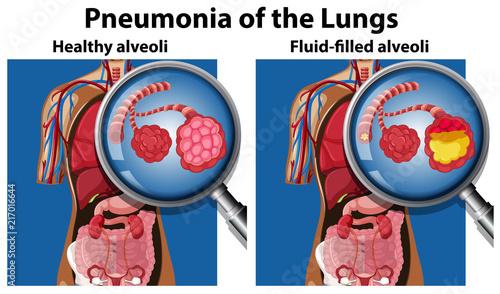 Photo sur Toile Jeunes enfants Pneumonia of the lungs concept