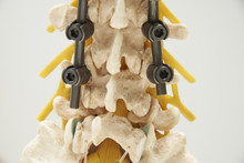 Model Of Instrument Fixation Of Human Lumbar Spine Model