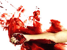 Arm Lying In Spilled Blood