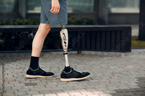 Valokuva  Disabled young man with foot prosthesis walks along the street.