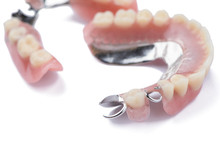Close-up Metal Removable Partial Denture On White Background
