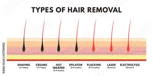 Hair Removal Concept  Shaving  Depilation Cream  Waxing  Epilator  Plucking  Laser Hair Removal