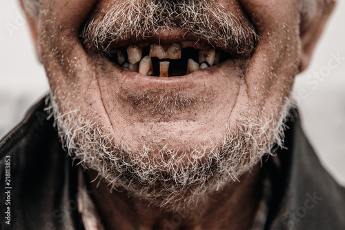 Old man without part of his teeth is smiling Wallpaper Mural