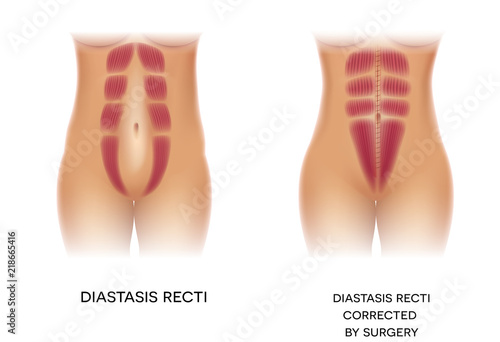 Fotografija  Diastasis Recti also known as Diastasis Rectus Abdominis or abdominal separation, it is common among pregnant women and post birth