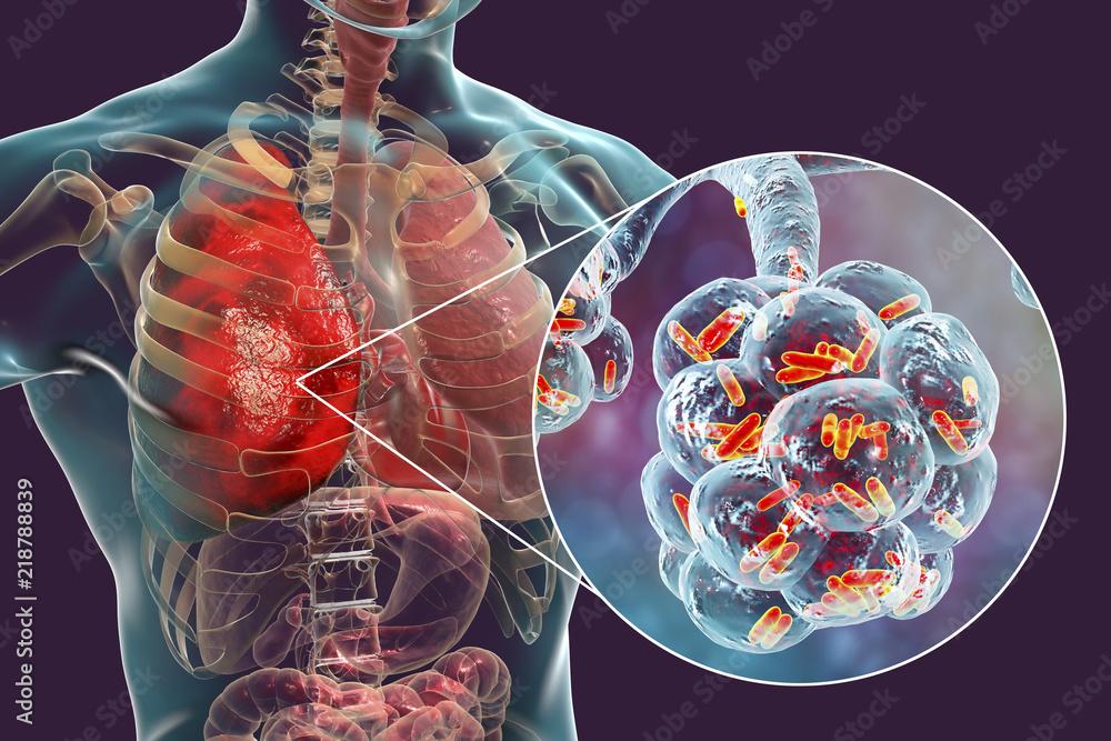 Fototapeta Bacterial pneumonia, medical concept. 3D illustration showing rod-shaped bacteria inside alveoli of the lung